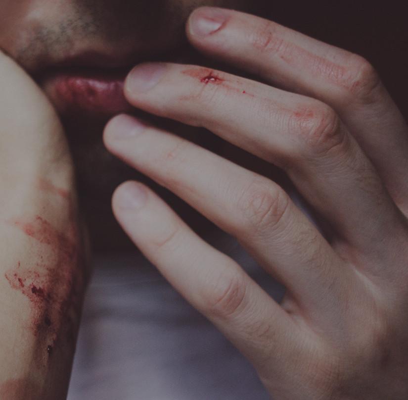 Exquisite Pain