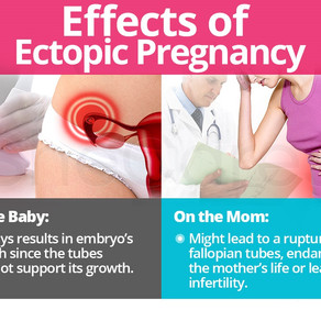 ከማህፀን በላይ/ ዉጪ እርግዝና/ Ectopic pregnancy