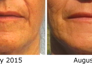 FlexAway Removes the Wrinkles Around the Mouth & Chin Area
