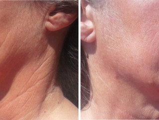 Helen 64 Years Young Avoids a Facelift With Flexaway System Resistance Device