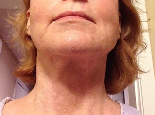 Avoid Facelift With Flexaway