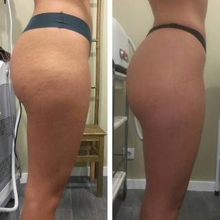 Redução da celulite e melhoria da qualidade da pele.