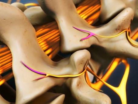 Quy trình thực hiện đốt rễ thần kinh bằng sóng vô tuyến RFA và các bước phục hồi