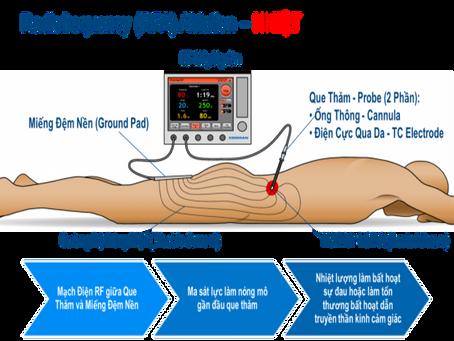 Phương Pháp Mới Điều Trị Đau Thắt Lưng Mạn Tính bằng Sóng Vô Tuyến RF (Radio Frequency)