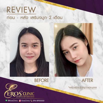 before-after.คุณวริญญา เสริมจมูก 2 เดือน