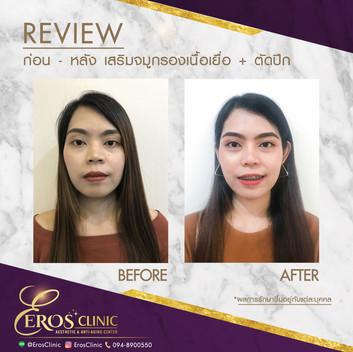 before-after.ชนิดา เสริมจมูก 6 เดือน.jpg