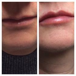 Förstorade läppar