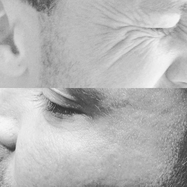 Botox och fillern Volite före och efter