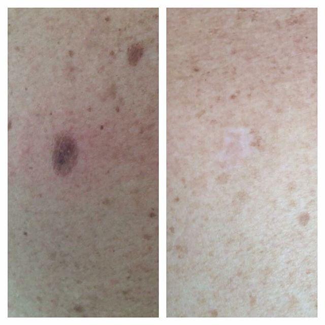 Före och efter en behandling med cryo. Kan göras på leverfläck, solskadad hud, vårtor, skintags m.m