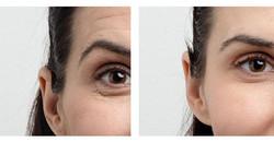 Detaljbild på behandlad tinning samt sam