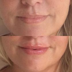 Lite påfyllning av läppar på vackra _dianasdrommar med Juvéderm ultra 3