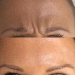 Före och efter Botoxbehandling av panna