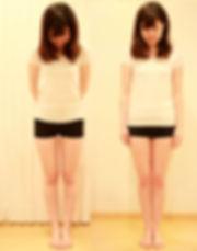 京都 整体 | 京都カイロプラクティック研究所(あんじゅ庵)構造的O脚と機能的O脚の鑑別テストについて