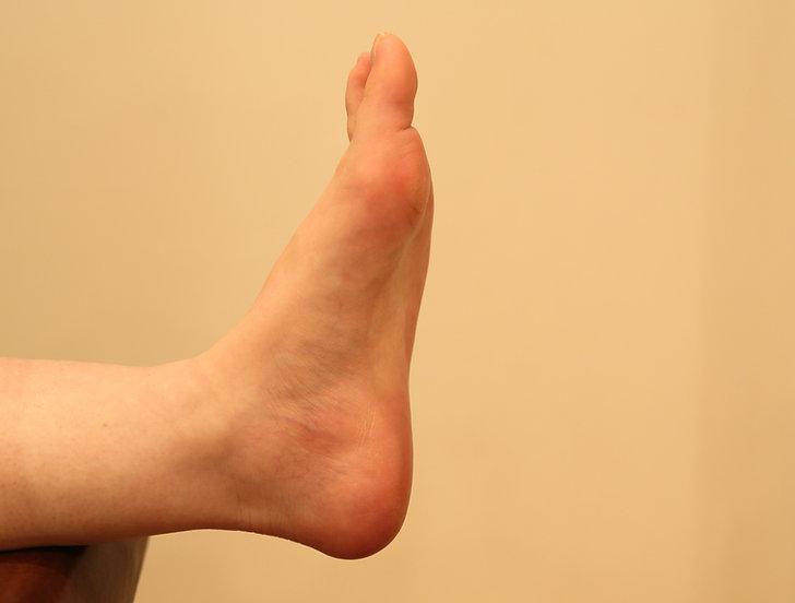 足の甲高(ハイアーチ)、京都 整体 | 京都カイロプラクティック研究所(あんじゅ庵)足の甲高(ハイアーチ)にみられる兆候や症状