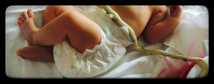 nascita lotus, doraluce, placenta