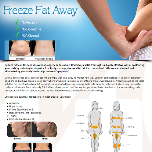 3 Cryolipolysis Fat Freeze Treatments