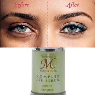 before & after photo eye serum