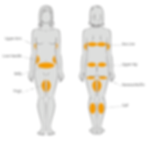 Body Layout of Cryolipolysis .png