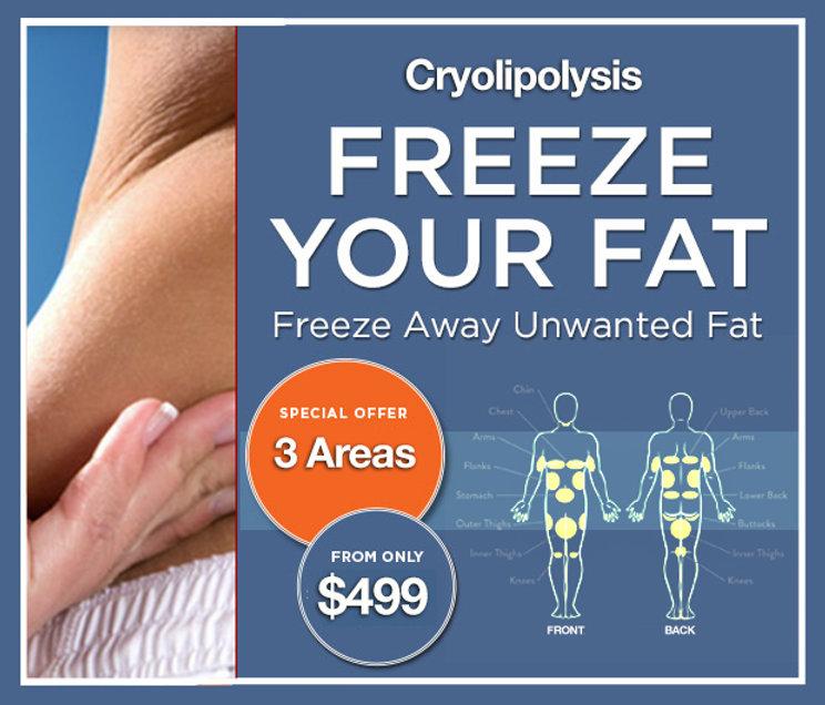 Freeze Away Fat $499 Special