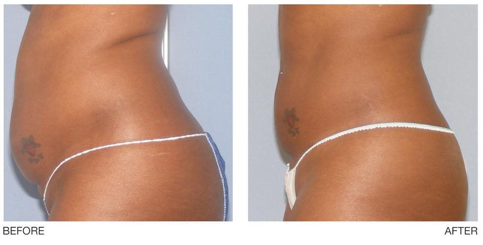 UltraShape® Fat Reduction Treatment