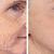 Wrinkle/Fine Line Reduction IONTreatment