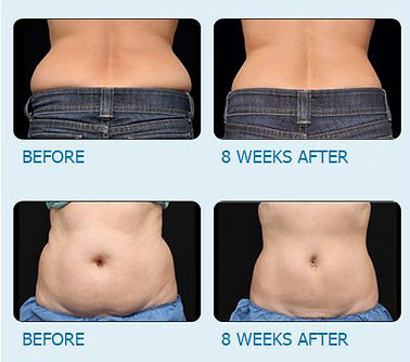Fat Freeze Before & After Body Waist Pho