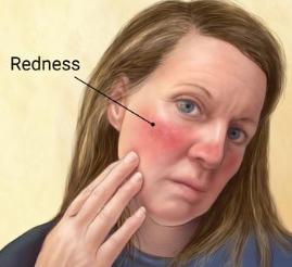 Rosacea Sensitive Treatment