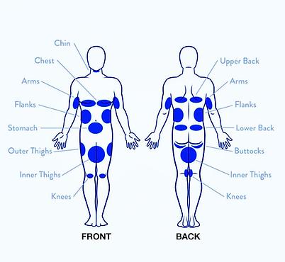 Fat Freeze Treatment Area Body Chart