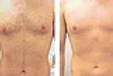 Full Chest & Abdomen Laser Hair Removal Package 8 Treatments