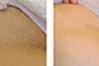 Bikini Line Exterior- Male Laser Hair Removal Pkg 8 Treatments