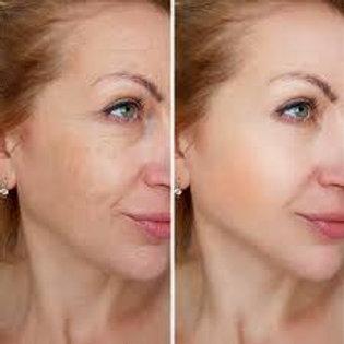 Photofacial Face and Neck 3 Treatments