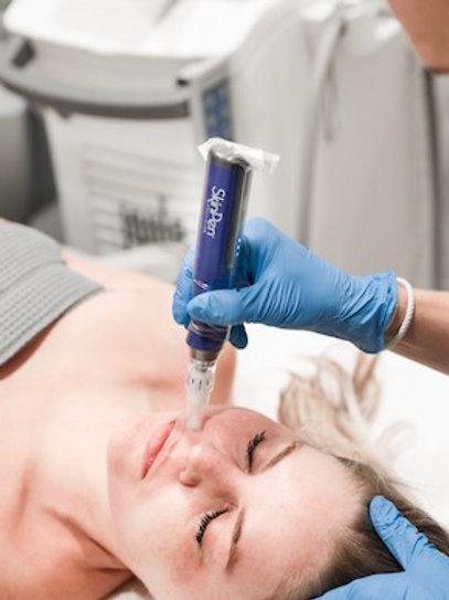 Skinpen 6 Treatments