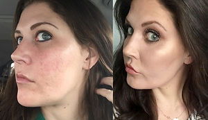 utah-before-and-after-co2-laser-resurfac