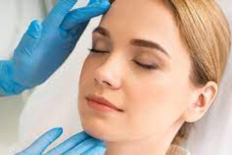 Photofacial Full Face 3 Treatments