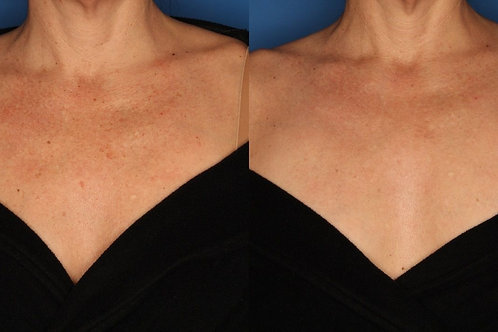 Photofacial Chest 3 Treatments