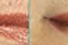 Upper Lip Laser Hair Removal 8 Treatments