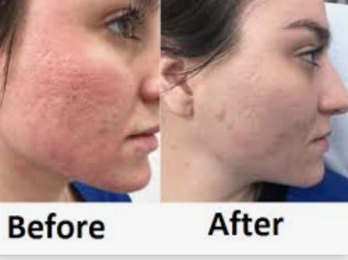CO2 Laser Full Face Resurfacing