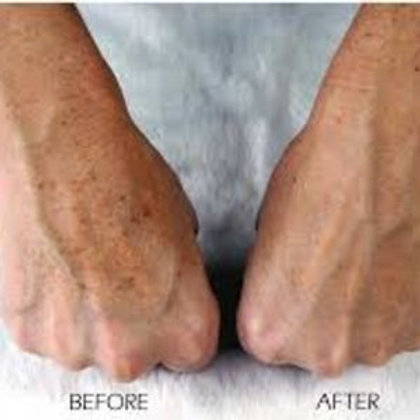 Photofacial Hands 3 Treatments