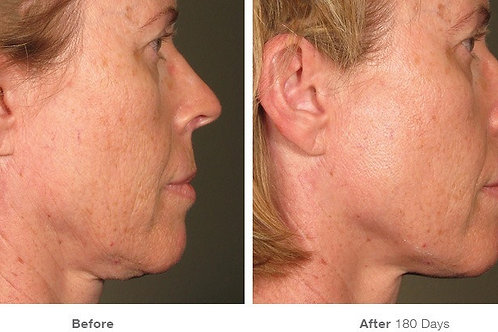 Upper Face Ultherapy One Treatment