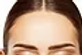 Glabella Laser Hair Removal 8 Treatments