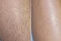 Lower Legs Laser Hair Removal Pkg 8 Treatments