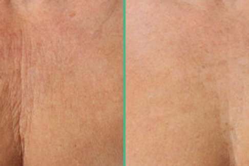 Chest Ultherapy One Treatment