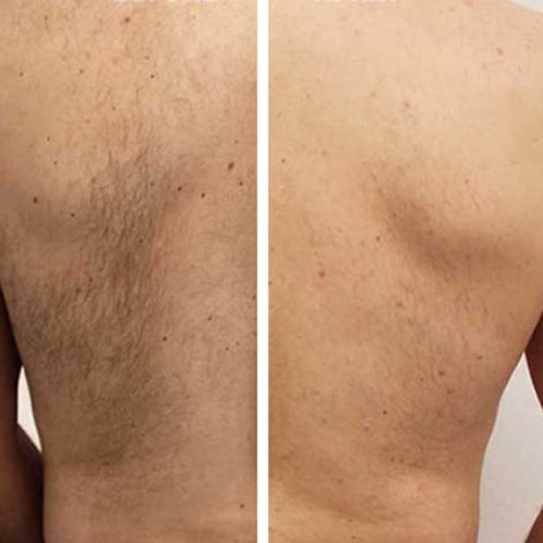 Full Back & Shoulders Laser Hair Removal Package 8 Treatments