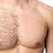 Full Chest Laser Hair Removal Pkg 8 Treatments