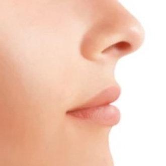 Nose Laser Hair Removel