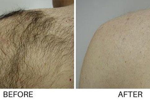 Shoulders Laser Hair Removal Pkg 8 Treatments