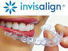 Guide-to-Living-with-Invisalign-Clear-Al