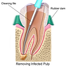 1200px-Blausen_0774_RootCanal.png