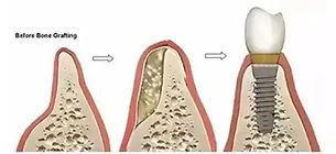 Bone graft before after.jpg