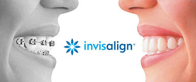 Comparison of braces with invisalign